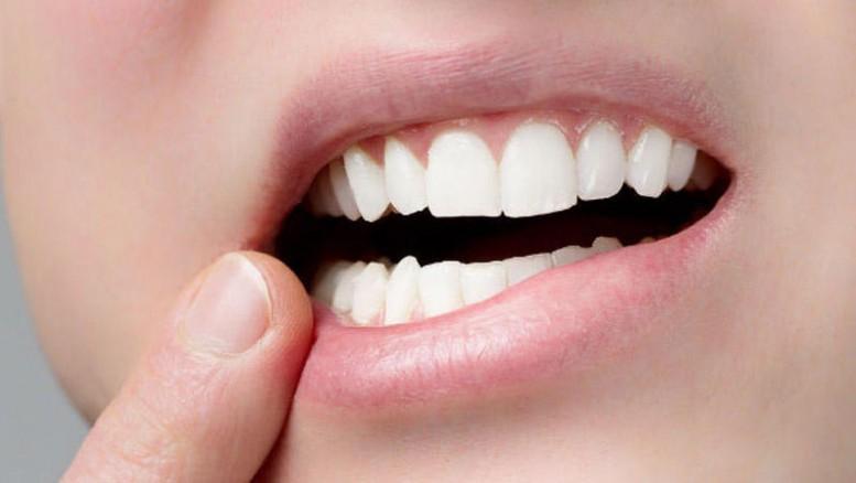 Ağıl dişləri nə üçün hamıda çıxmır?